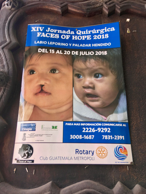 The Faces of Hope Program.  There is an unusually high rate of cleft lip and cleft palate in Guatemala.  Doctors donate their time to perform corrective surgeries.  Support from local teams incudes Companeros Cirugia, local patrons and Rotary Clubs.  Families travel 10+ hours by bus and on foot from rural Guatemala.
